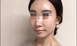 울산 미앤미 점에서 pha필링+사각보톡스 시술후기