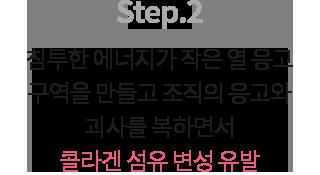 슈링크 시술순서 설명 02