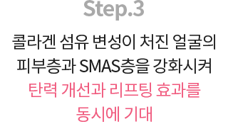 슈링크 시술순서 설명 03