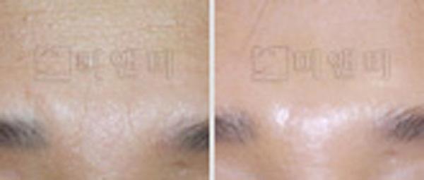 [시술전후사진]미간/이마 주름보톡스 시술전후